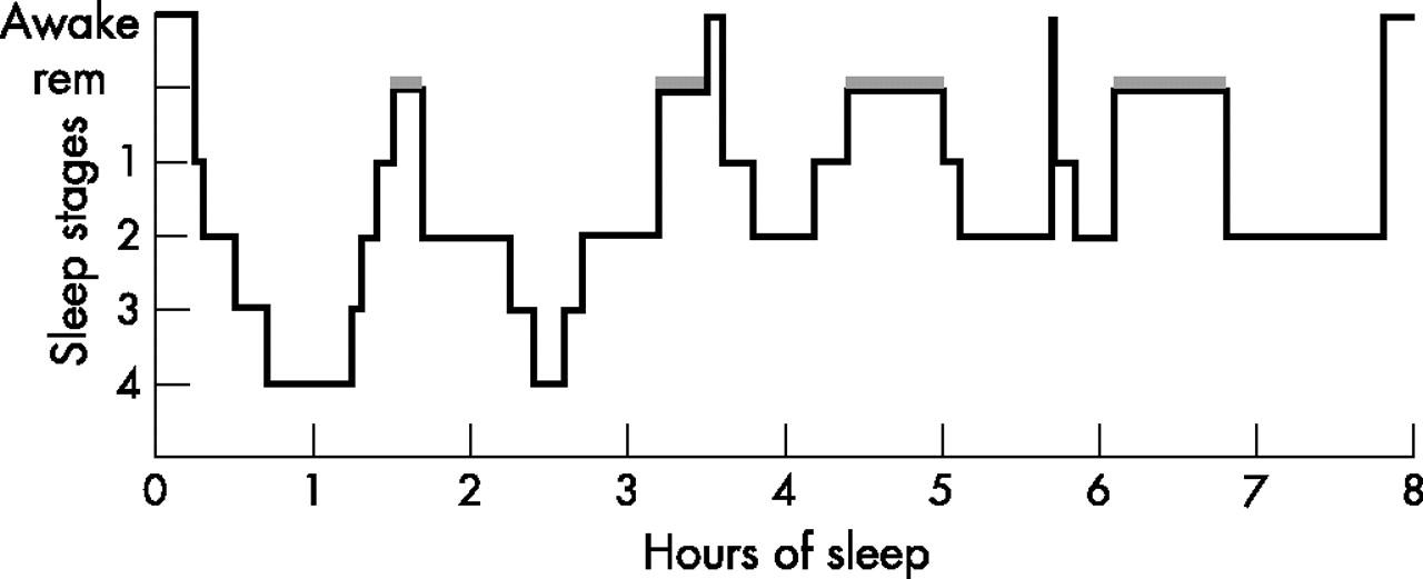 Rem sleep rebound definition dating 1